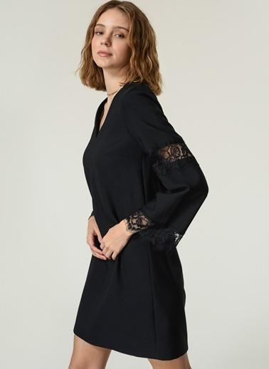 NGSTYLE NGSTYLE Kadın Dantel Detaylı Elbise Siyah